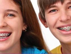 מתי כדאי להרכיב גשר על שיני הילד?